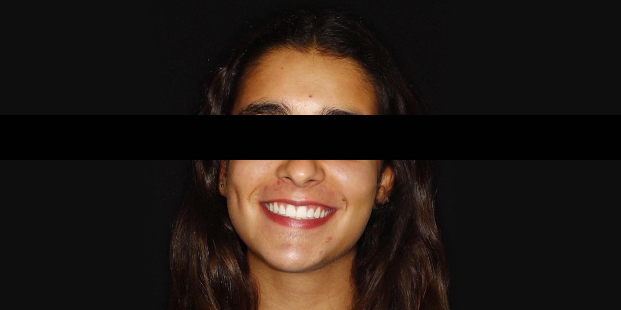 After-Ortodontia