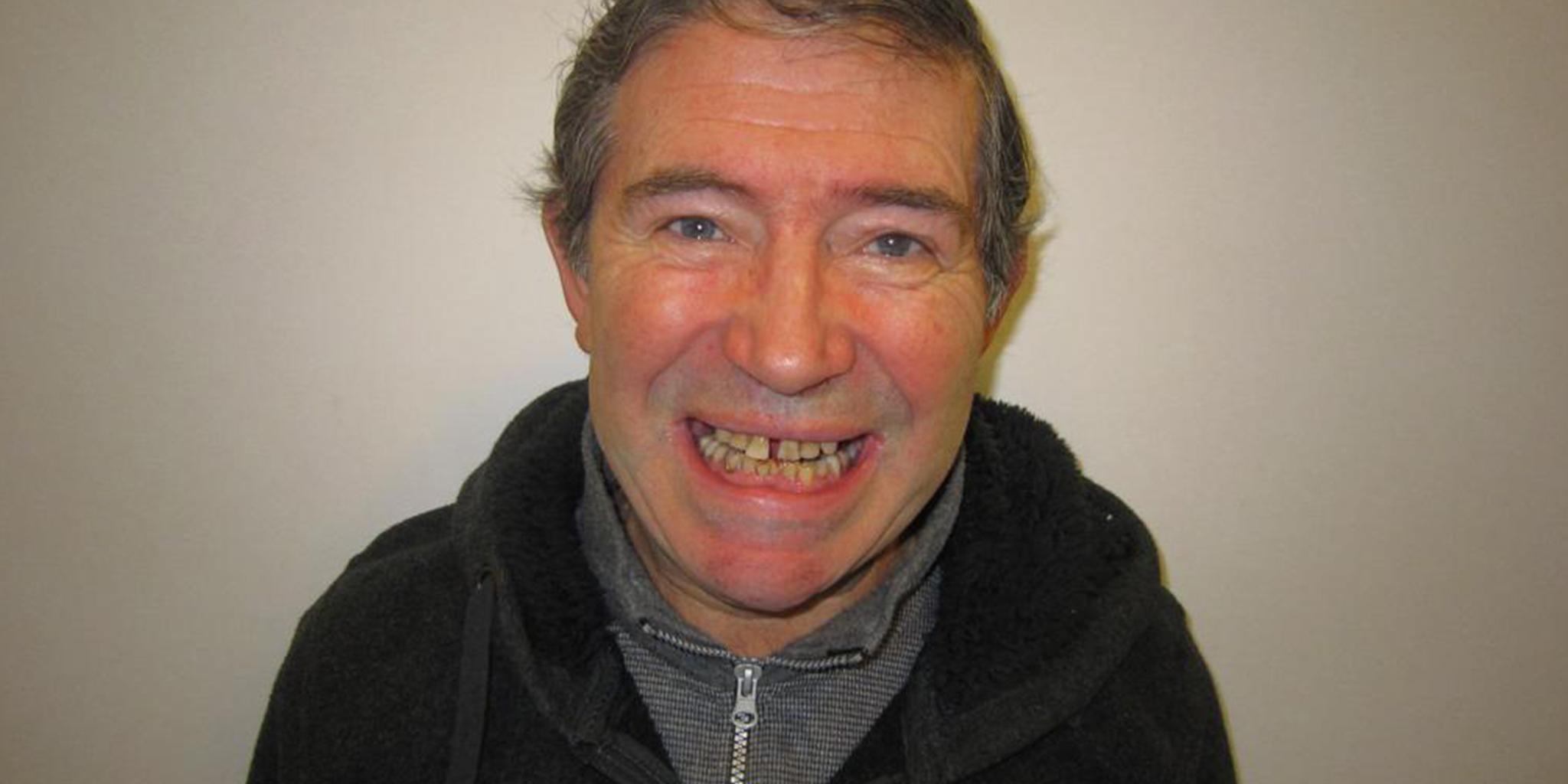 Before-Reabilitação Oral