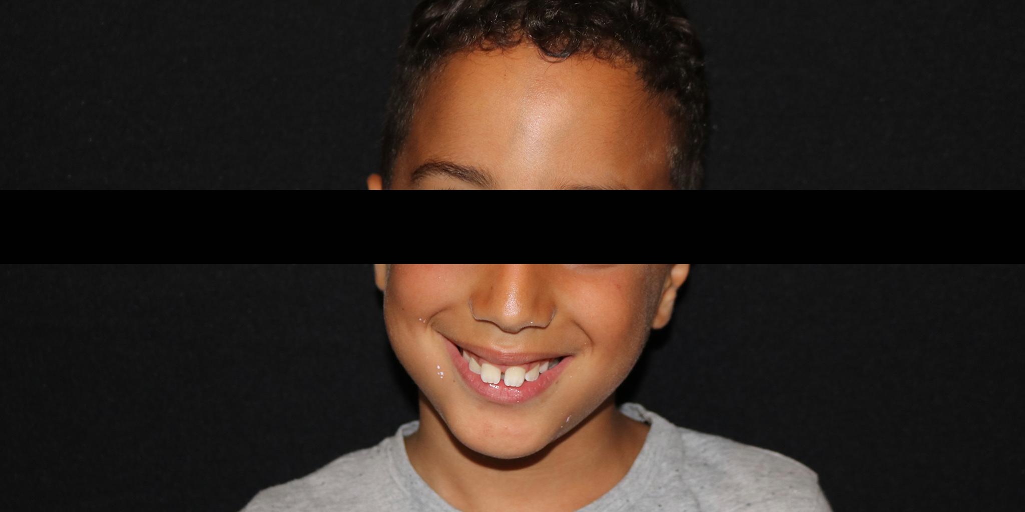 Before-Ortodontia removível