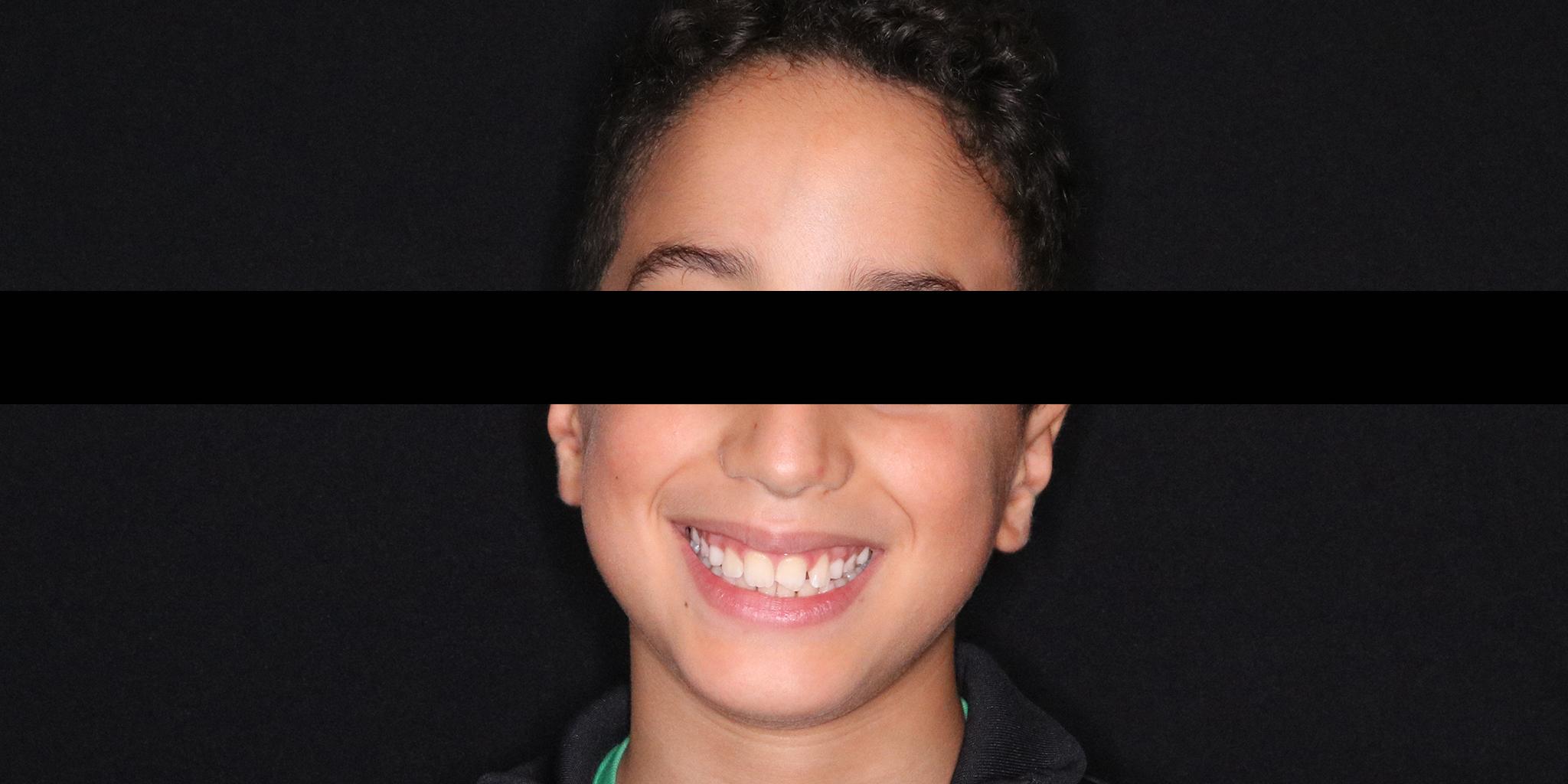 After-Ortodontia removível