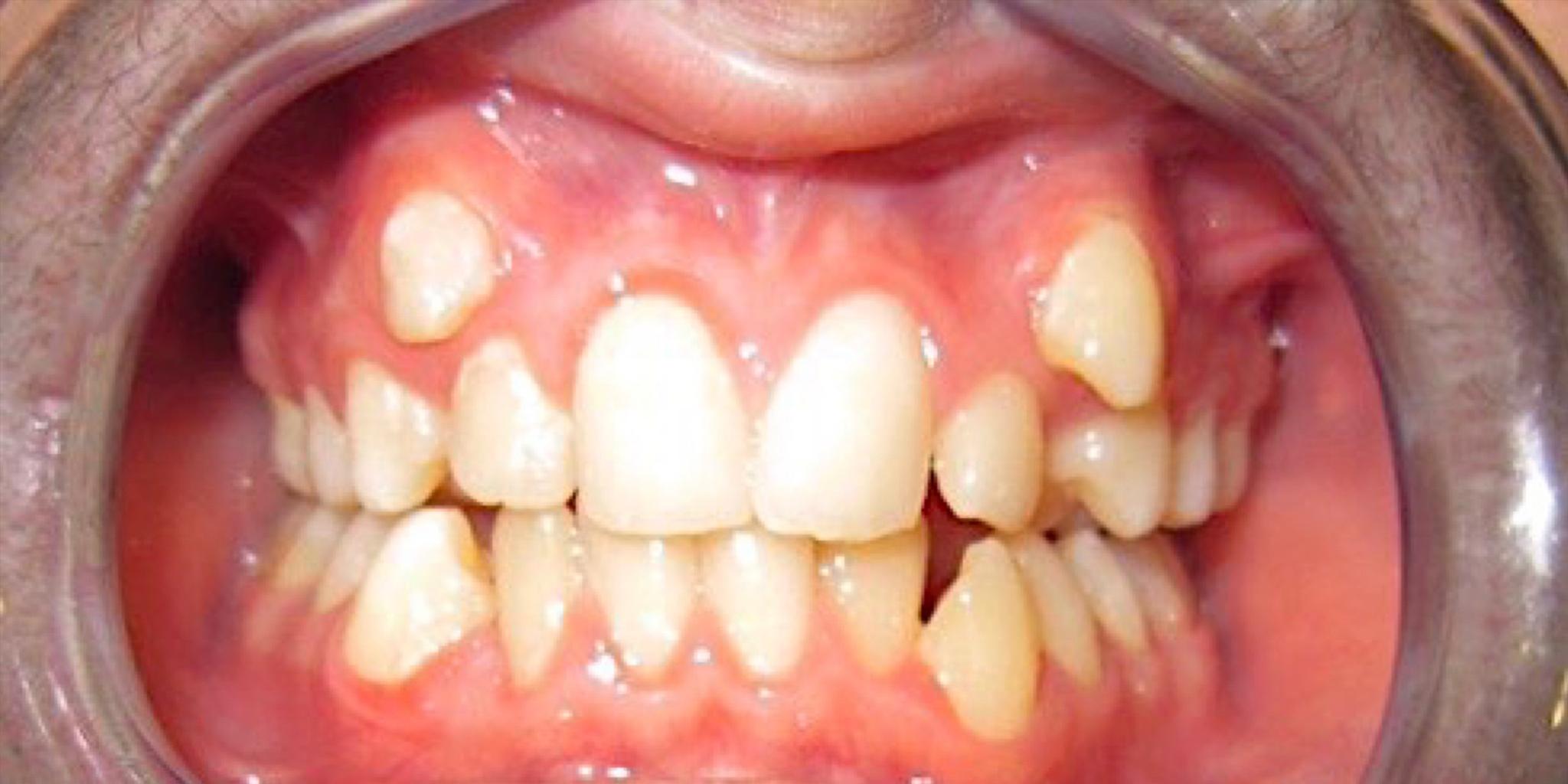 Before-Ortodontia